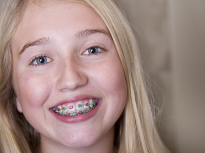 Braces For Children & Teens